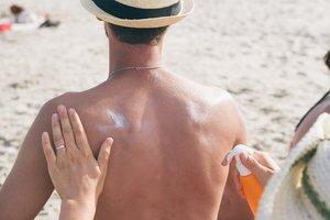 Sunscreen Sunburn